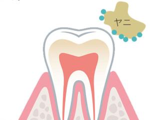 歯に付着しようとしているヤニのイメージ画像